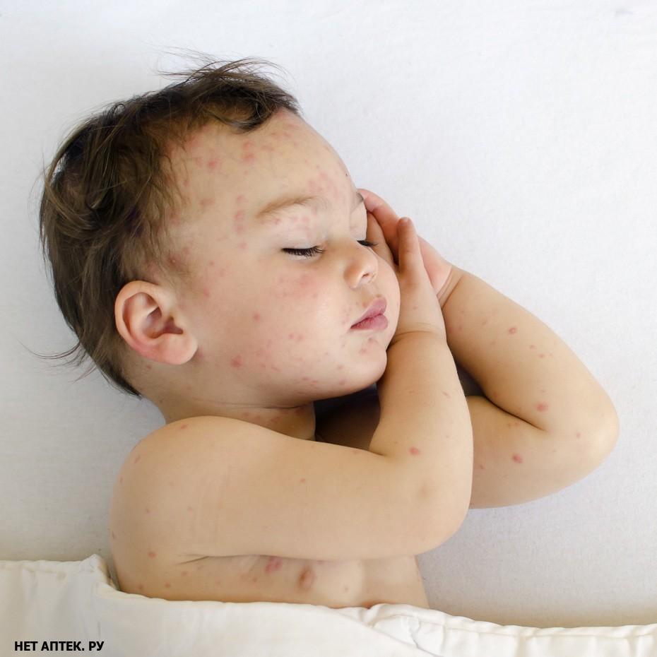 аллергия на коже температура